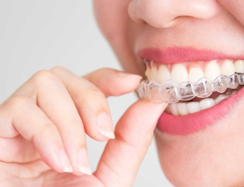 What to consider before getting Invisalign treatment?