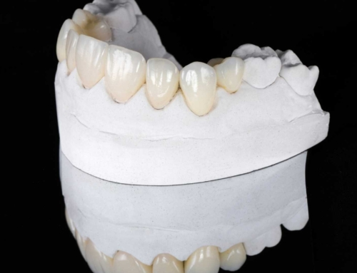 What You Need to Know About Inlays, Onlays, and Veneers?