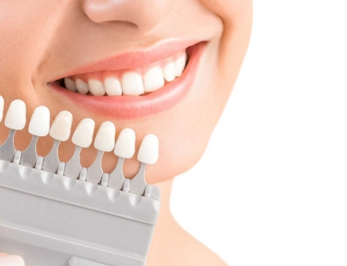 Getting a Dental Crown: What you need to know
